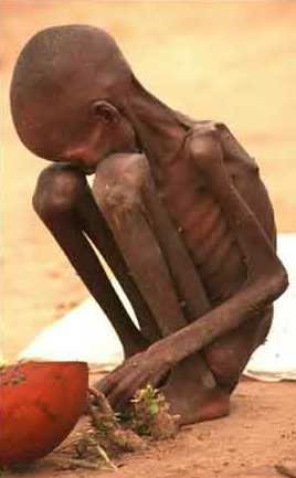 starving_child